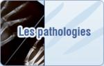 Arthrose du pouce, syndrome du canal carpien, doigts à ressaut